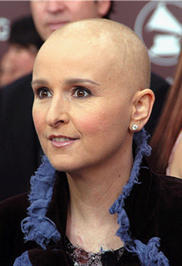 a photo of Melissa Etheridge after her chemotherapy