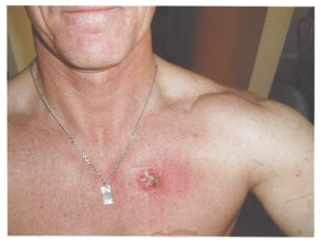 a photo of skin cancer on Robert Black's chest before coffee black salve