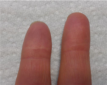 a photo of Dale Aychman's healed fingers after using Squalane topical oil
